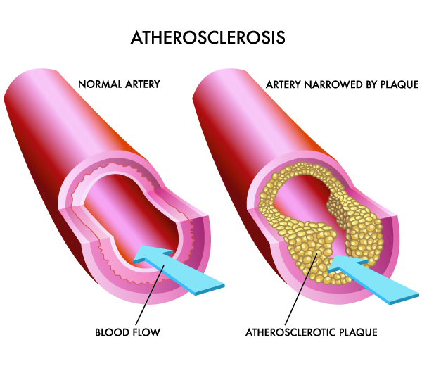 Leeming-dental-oral-health-atherosclerosis