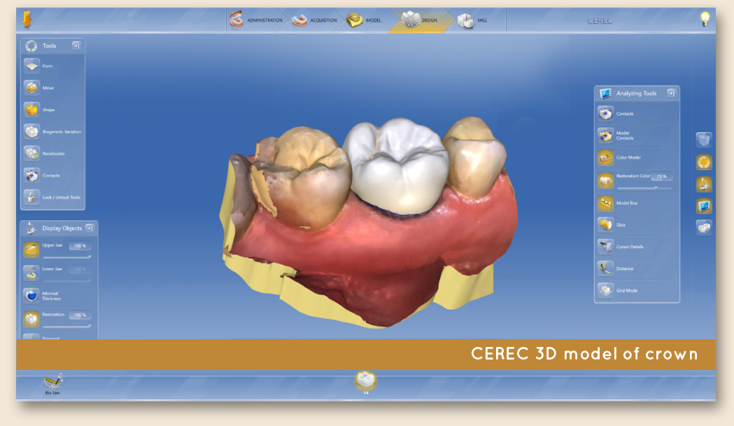Leeming-dental-CEREC-dental-crowns-3d-model
