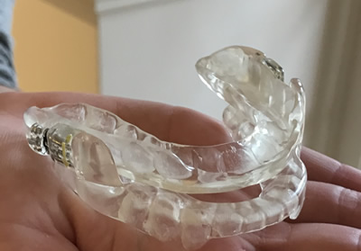 Leeming-dental-mandibular-advancement-device