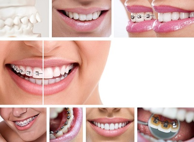 Invisible braces and teeth alignment