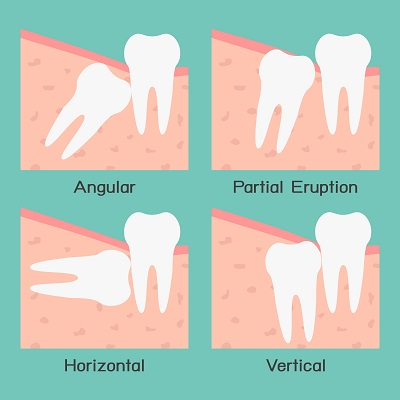 Leeming Denta Wisdom Tooth Removal