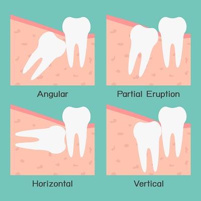 Leeming Denta Wisdom Tooth Removal