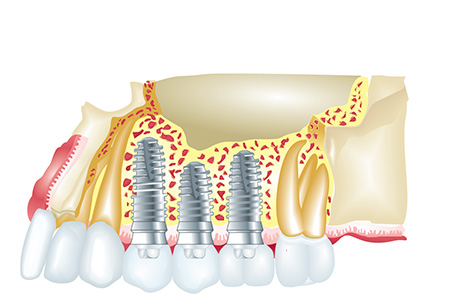 Leeming-dental-implant-benefit
