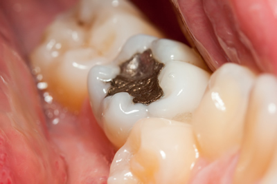 Leeming dental Amalgam Filling