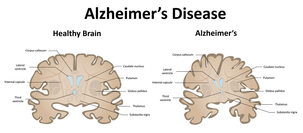 Senior Care Alzheimer's disease leeming dental