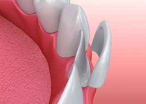 Leeming dental Dental Veneers Porcelain Veneer installation Procedure. 3D illustration
