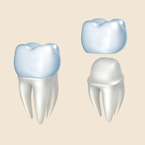 leeming-dental-crowns-perth-dentist-Perth