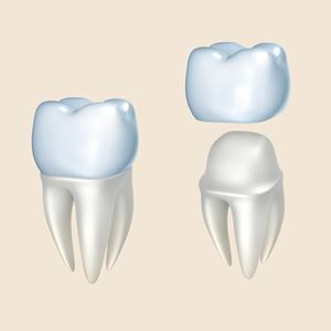 leeming-dental-crowns-perth-dentist-Perth