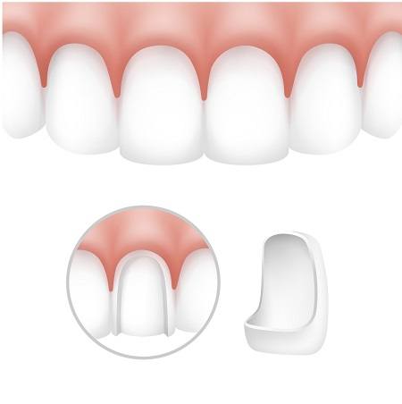 Leeming-dental-veneers-treatment-small
