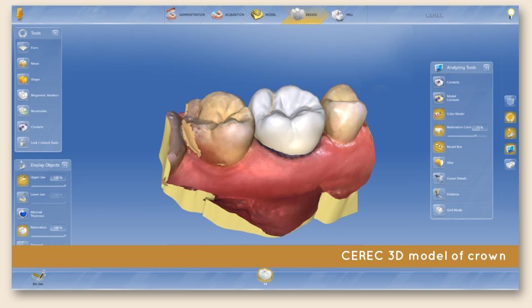 Leeming-dental-CEREC-dental-crowns-3d-model
