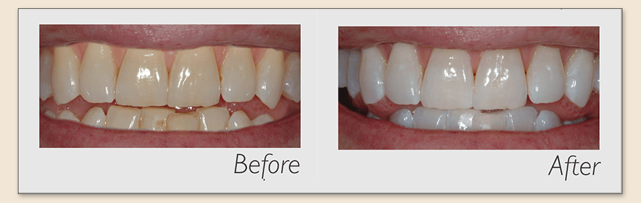 Leeming-dental-Philips-Zoom-teeth-whitening-before-after