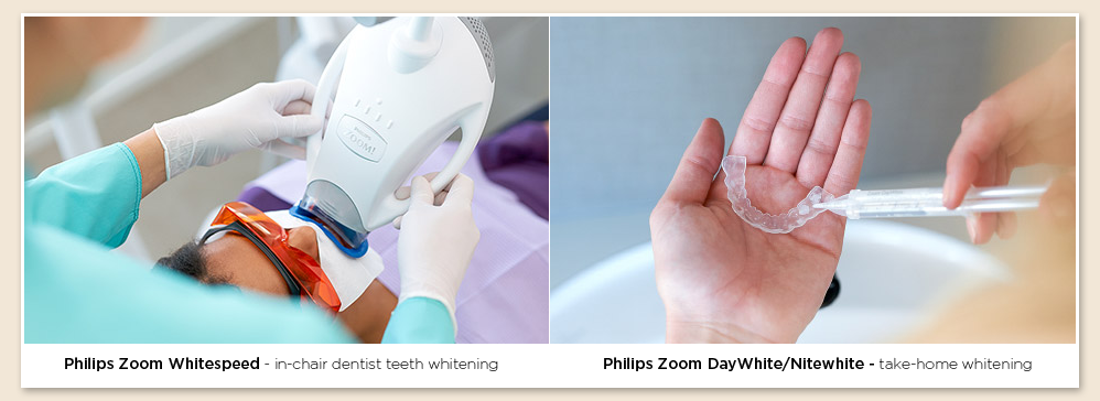 teeth whitening in Southlake Texas
