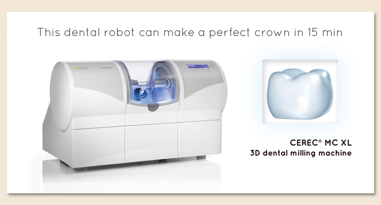 CEREC crowns – one hour, one visit!