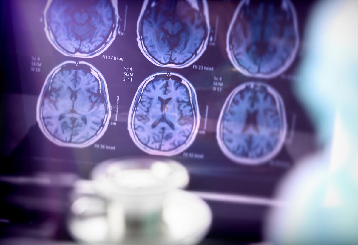 Analysis Of Alzheimer's Disease