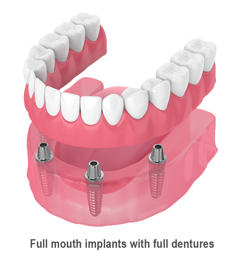 Leeming-dental-Full-Mouth- Implants