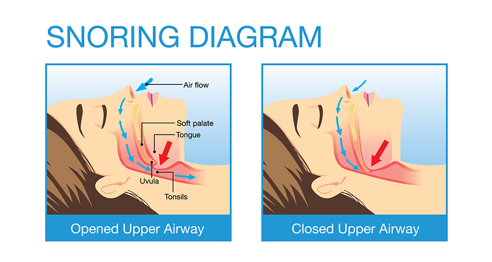Leeming-sleeping-dentistry-human-airway