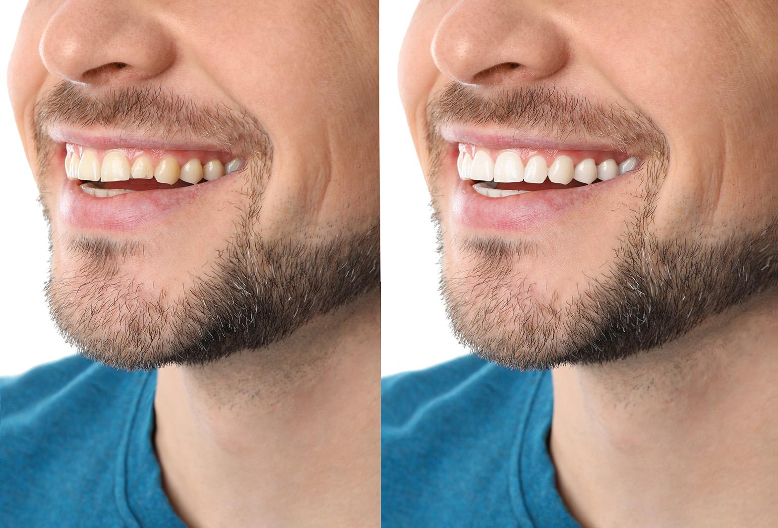 before-after-Leeming-dental-Perth