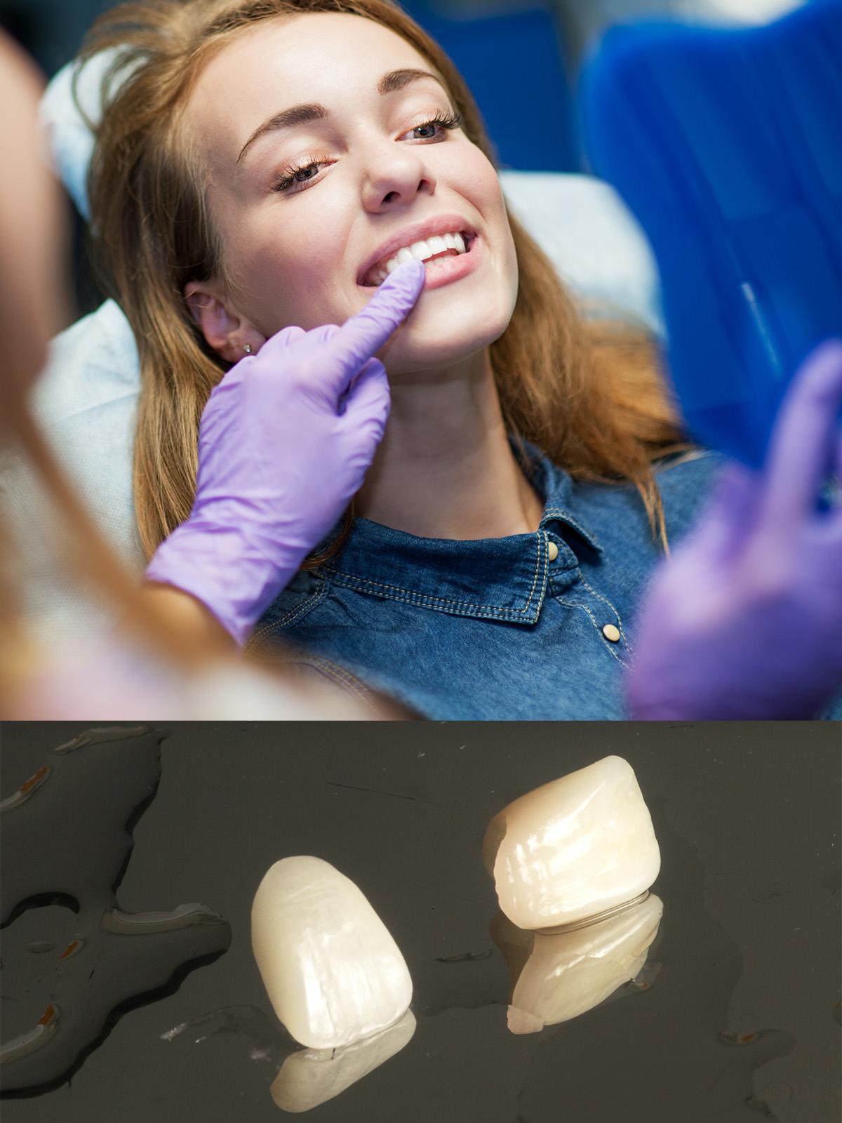 Leeming-dental-dental-CEREC-veneers