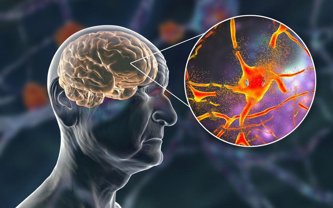Gum disease sets off Alzheimer's biomarkers in cognitively healthy adults